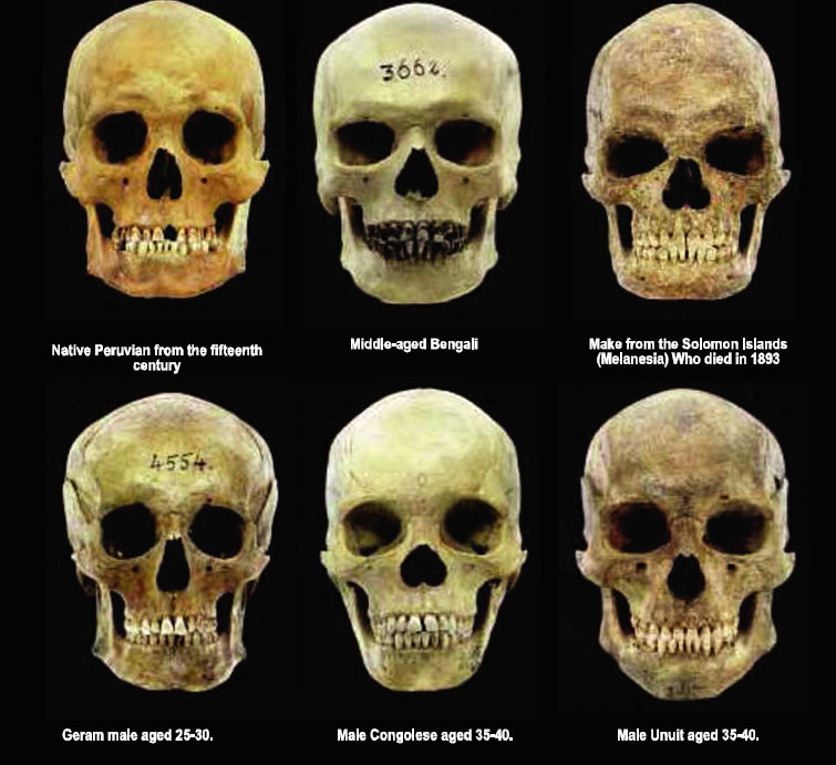 Skull structures different races